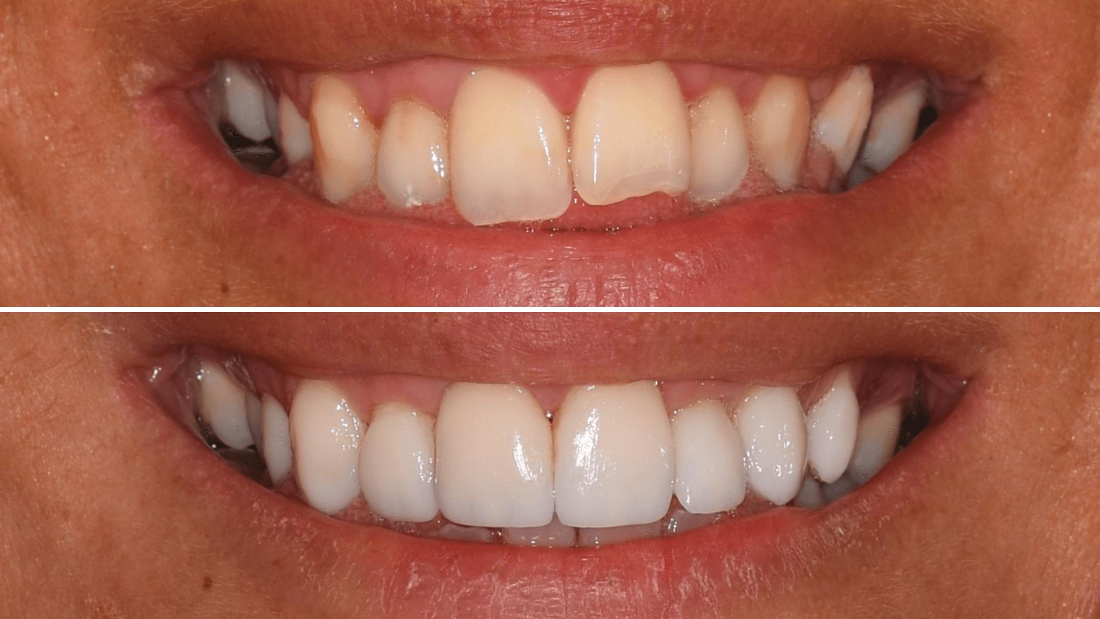 Előtte-utána: Új mosoly néhány nap alatt / Differental Fogorvosi Rendelő
