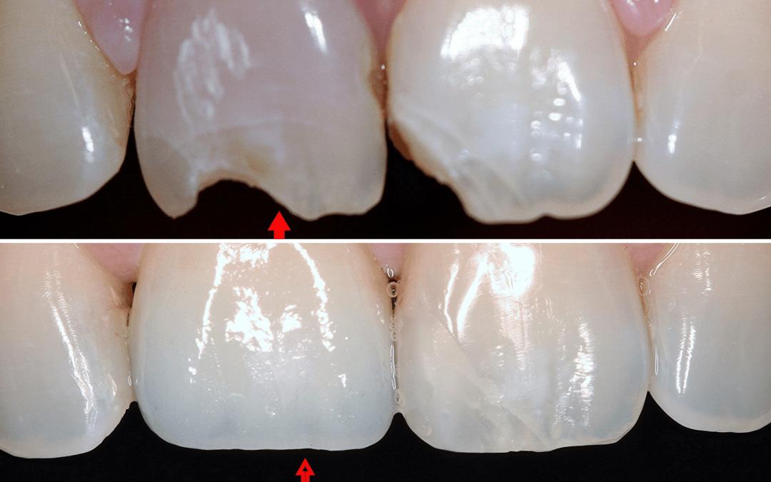 Előtte-utána: Fogászati implantátumra készült korona