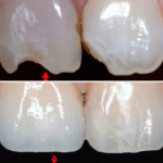 Előtte-utána: Fogászati implantátumra készült korona / Differental Fogorvosi Rendelő