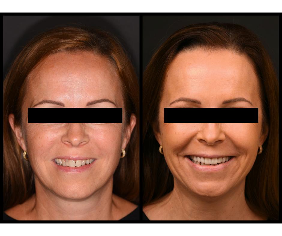 Előtte-utána: Kerámia héj az új mosolyért / Differental Fogorvosi Rendelő